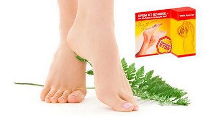 Как лечить шишки на больших пальцах ног?