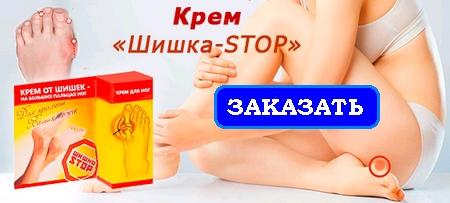 krem-shishka-stop-kak-lechit-shishki-na-nogakh